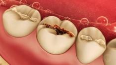 Diş Dolgusu ve Kaplama Gusül Abdestine Mani midir?